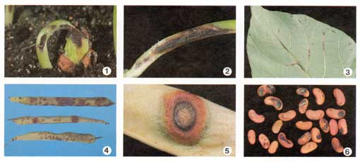Bean Anthracnose Photo collage